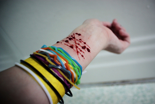 Bleeding Wrist Of A Girl